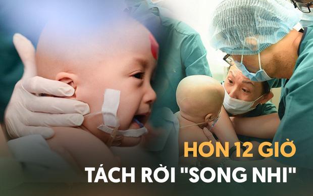 Ảnh siêu âm cặp song sinh dính liền và lời nhắn nhủ xúc động của bác sĩ 1 năm trước: Tụi con sẽ được sinh ra bởi lòng can trường của cha mẹ con-4