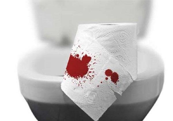 Khi đi vệ sinh nếu thấy 3 dấu hiệu này xuất hiện, nên đi khám gan ngay kẻo muộn-3