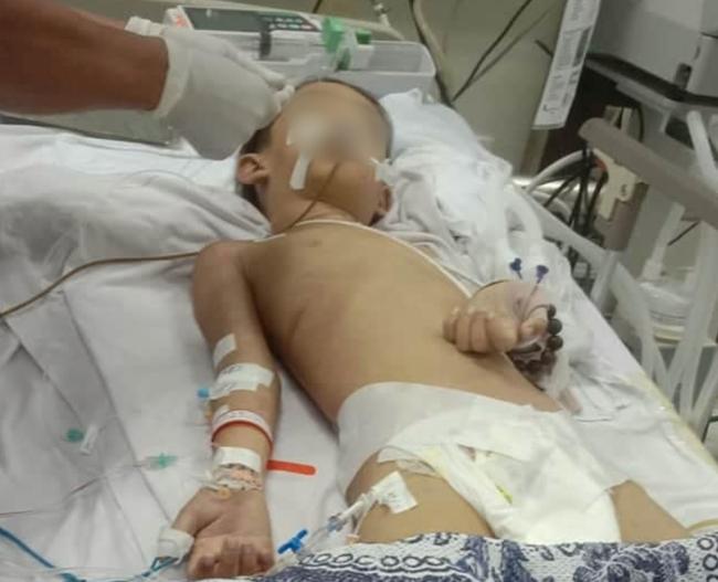 Bé trai 7 tuổi hôn mê sau khi mổ lấy nẹp tay ở bệnh viện Bình Phước đã tử vong-1
