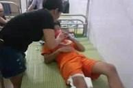 Thanh Hóa: Bênh cháu, cô giáo mầm non đánh trọng thương bé trai 13 tuổi