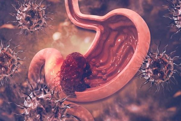 Có 4 loại ung thư cực dễ lây lan giữa vợ và chồng, nếu 1 trong 2 người mắc bệnh thì người kia cần đi khám ung thư khẩn cấp-4