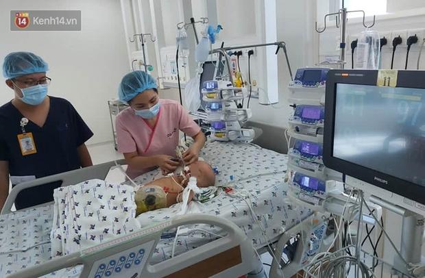 Thông tin mới nhất của cặp song sinh được tách rời: Bé Diệu Nhi đã cai máy thở, phản xạ tốt khi nghe giọng cha mẹ-1