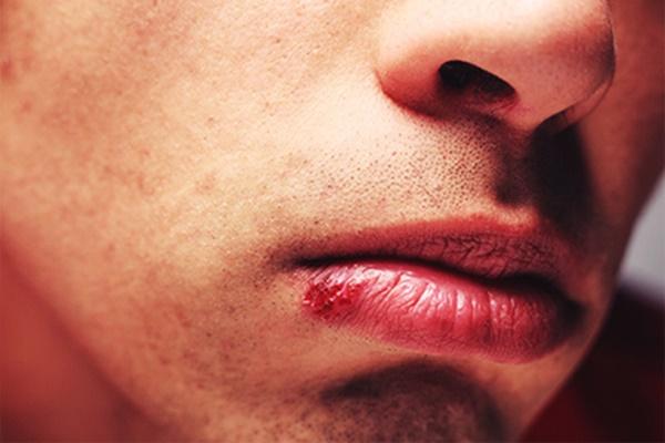 Bất thường trên mặt là dấu hiệu cảnh báo một số bệnh nguy hiểm