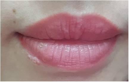 Xăm môi được 3 ngày thì bị mụn rộp herpes ở môi, 2 tuần sau tổn thương toàn thân: 3 nguy cơ có thể gặp sau khi phun xăm bác sĩ muốn mọi người cần biết-1