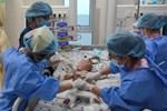 Ca sinh ba độc nhất thế giới, 2 bé dính liền giống Trúc Nhi - Diệu Nhi sau 4 năm-8