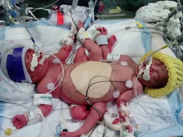 Ca sinh ba độc nhất thế giới, 2 bé dính liền giống Trúc Nhi - Diệu Nhi sau 4 năm-4