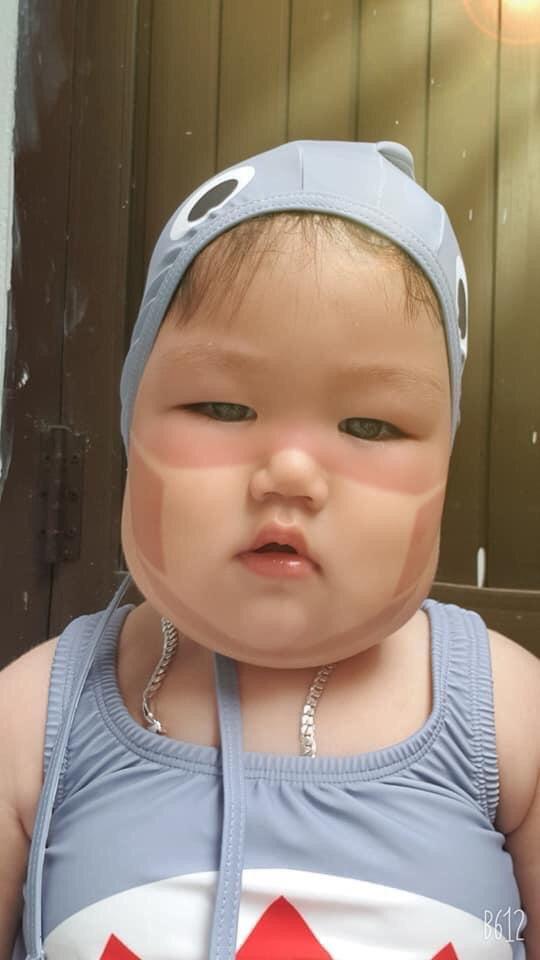 Xôn xao khắp Facebook: Xuất hiện nhiều em bé bị cháy nắng bá đạo, in hằn nguyên chiếc khẩu trang trên mặt, chuyện gì đang xảy ra?-5