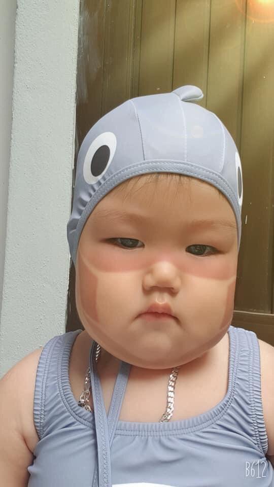 Xôn xao khắp Facebook: Xuất hiện nhiều em bé bị cháy nắng bá đạo, in hằn nguyên chiếc khẩu trang trên mặt, chuyện gì đang xảy ra?-6