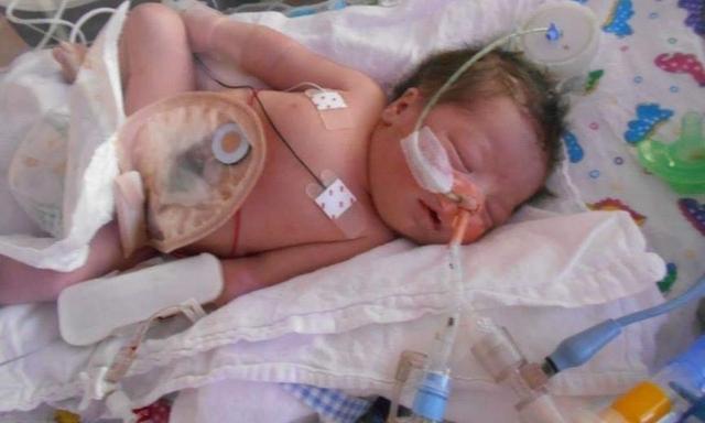 Đang háo hức chờ đón con đầu, bà mẹ chết đứng khi nghe bác sĩ siêu âm thông báo một tin khủng khiếp-2