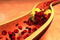 Cách đơn giản để xác định có bị mỡ máu hay không: Đừng bỏ qua mà nguy hiểm tính mạng