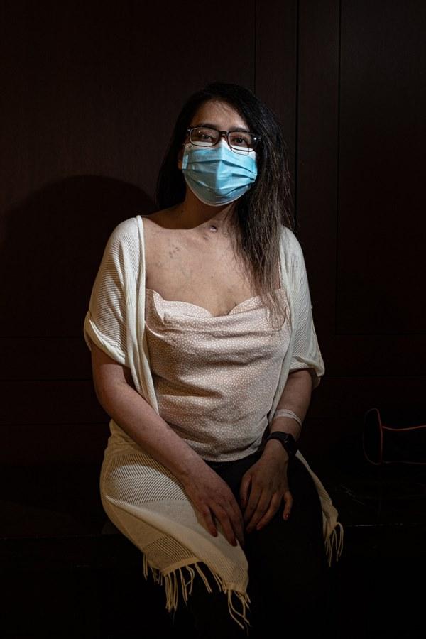 Đó là cơn ác mộng dài đến đáng sợ: Trải lòng của bệnh nhân Covid-19 đầu tiên được ghép phổi tại Mỹ sau khi trở về từ cõi chết-1