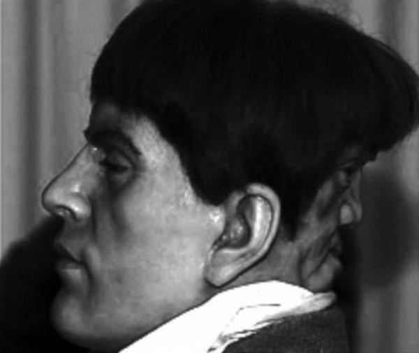 Bí ẩn chàng trai quý tộc có gương mặt phía sau gáy, mỗi khi khóc thì nó lại cười và bị quấy rầy đến nỗi hóa điên và tự tử ở tuổi 22-2