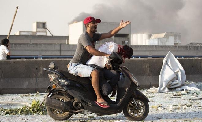 Thi thể khắp nơi - cảnh tượng tang tóc sau vụ nổ ở Beirut-1