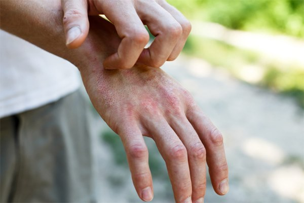 Bác sĩ phát hiện dấu hiệu lạ trên da của nhiều bệnh nhân Covid-19-1