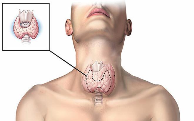 Sau 25 năm ăn muối iốt, bệnh tuyến giáp bùng phát tại TQ: Sai lầm lớn rất nhiều người mắc-1