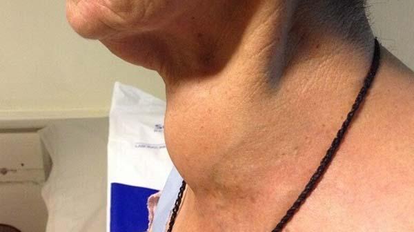 Sau 25 năm ăn muối iốt, bệnh tuyến giáp bùng phát tại TQ: Sai lầm lớn rất nhiều người mắc-2