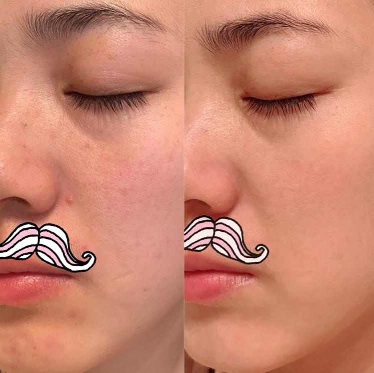 Ở tuổi 30 Ngụy Anh Lạc vẫn sở hữu làn da căng mịn như em bé nhờ áp dụng chế độ cai skincare học từ chuyên gia người Nhật-2