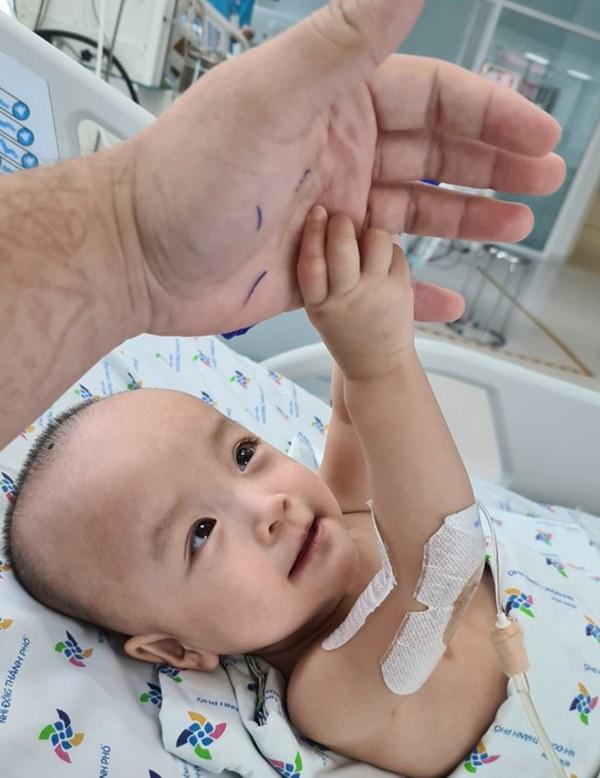 Chị em Trúc Nhi - Diệu Nhi tươi cười nắm lấy tay bác sĩ, dự kiến sẽ tập đi trong 6 tuần tới-2