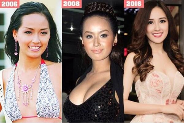 Mai Phương Thuý thừa nhận phẫu thuật thẩm mỹ, ghi tên vào hội Hoa hậu lên đời nhờ dao kéo-1