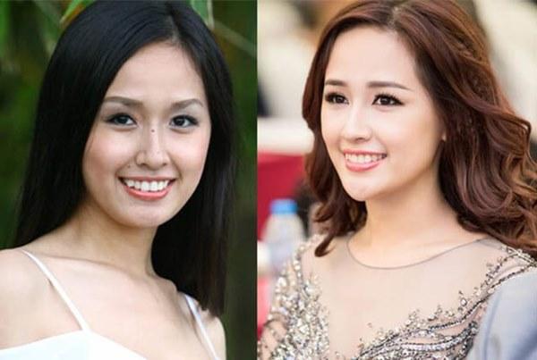 Mai Phương Thuý thừa nhận phẫu thuật thẩm mỹ, ghi tên vào hội Hoa hậu lên đời nhờ dao kéo-2