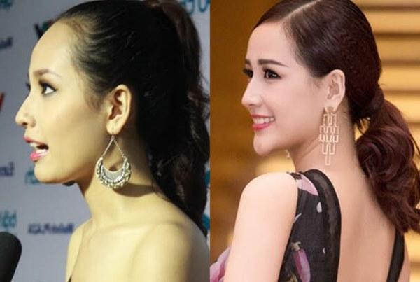 Mai Phương Thuý thừa nhận phẫu thuật thẩm mỹ, ghi tên vào hội Hoa hậu lên đời nhờ dao kéo-4