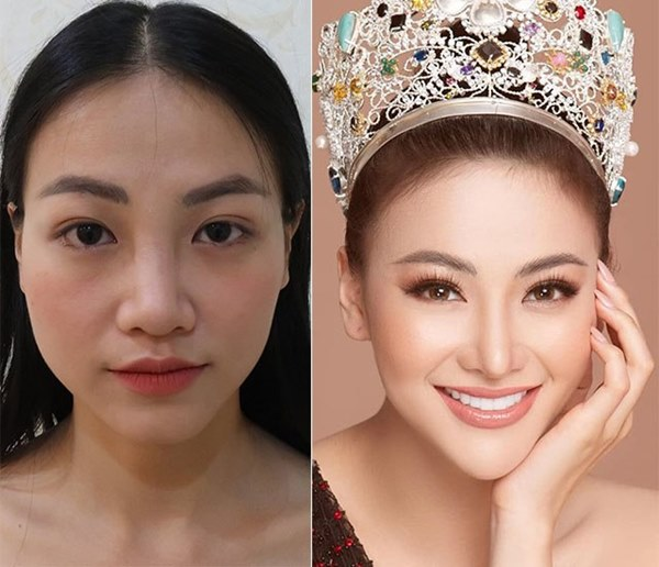 Mai Phương Thuý thừa nhận phẫu thuật thẩm mỹ, ghi tên vào hội Hoa hậu lên đời nhờ dao kéo-9
