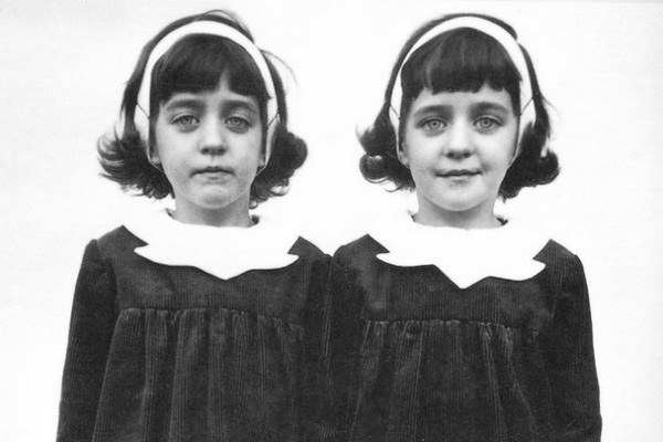 Cặp sinh đôi kỳ lạ: Sống cùng với ký ức của 2 người chị quá cố, giống đến cả nỗi sợ hãi và cách ăn không ai giải thích được-3