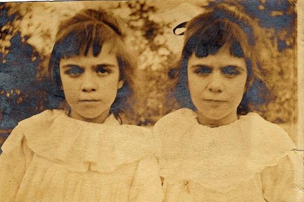 Cặp sinh đôi kỳ lạ: Sống cùng với ký ức của 2 người chị quá cố, giống đến cả nỗi sợ hãi và cách ăn không ai giải thích được-4