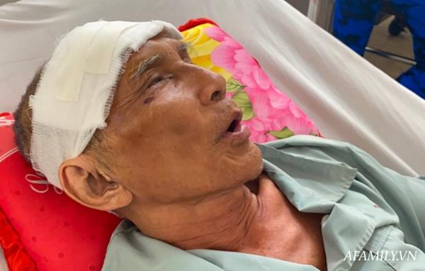 TP.HCM: Bệnh viện khẩn tìm người thân cho cụ ông bị té đập đầu mê sảng, không có ai bên cạnh-1