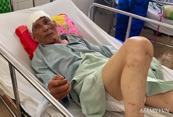 TP.HCM: Bệnh viện khẩn tìm người thân cho cụ ông bị té đập đầu mê sảng, không có ai bên cạnh-2