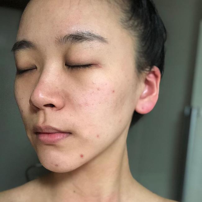 Bác sĩ cảnh báo 4 lỗi tẩy da chết nghiêm trọng nhất khiến làn da của chị em xấu và lão hóa nhanh như chớp-2