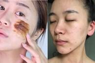 Bác sĩ cảnh báo 4 lỗi tẩy da chết nghiêm trọng nhất khiến làn da của chị em xấu và lão hóa nhanh như chớp