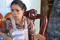 Người phụ nữ Quảng Bình tố bị chồng bạo hành suốt 11 năm vì không có con