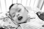Bé gần 2 tuổi uống nhầm thuốc tẩy bồn cầu