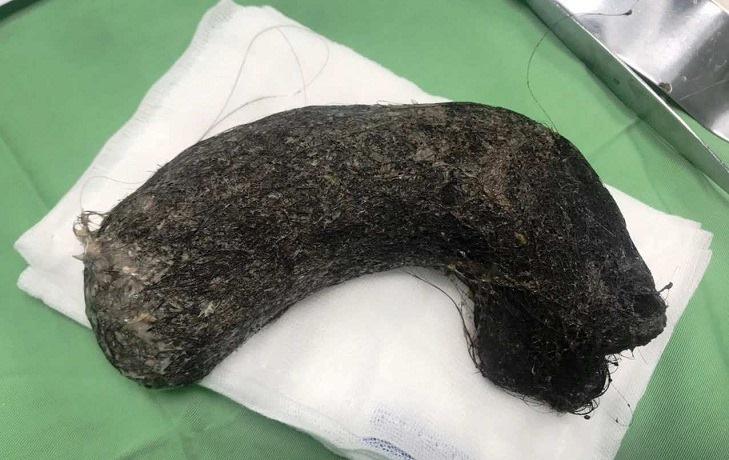 Phát hiện búi tóc khủng nặng 1kg ở trong dạ dày bé gái 11 tuổi-1