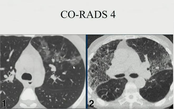 Hình ảnh phổi người mắc Covid-19 ở Việt Nam-2