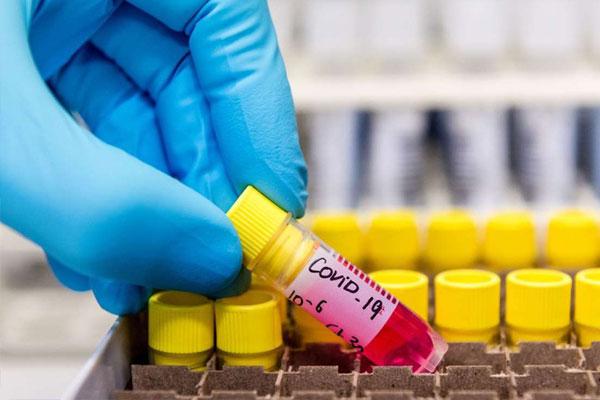 Phát hiện chủng virus SARS-CoV-2 ở Malaysia có khả năng lây nhiễm gấp 10 lần-1