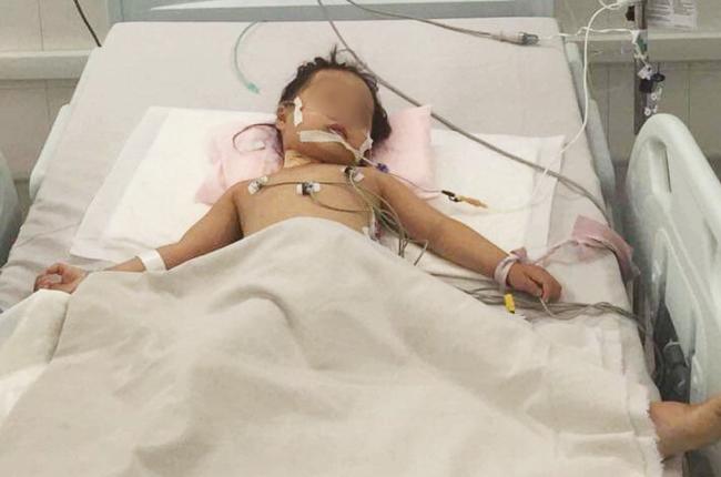 Chạy ECMO cứu bé gái 3 tuổi nôn ói hàng chục lần, truỵ tim mạch vô cùng nguy kịch-1