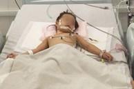 Chạy ECMO cứu bé gái 3 tuổi nôn ói hàng chục lần, truỵ tim mạch vô cùng nguy kịch
