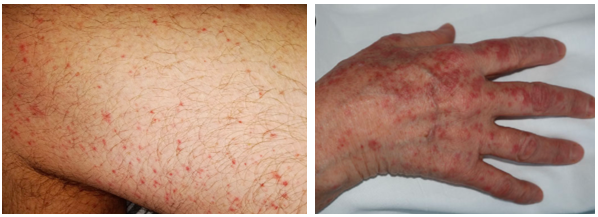 Năm dấu hiệu trên da cảnh báo bạn có thể mắc Covid-19-2
