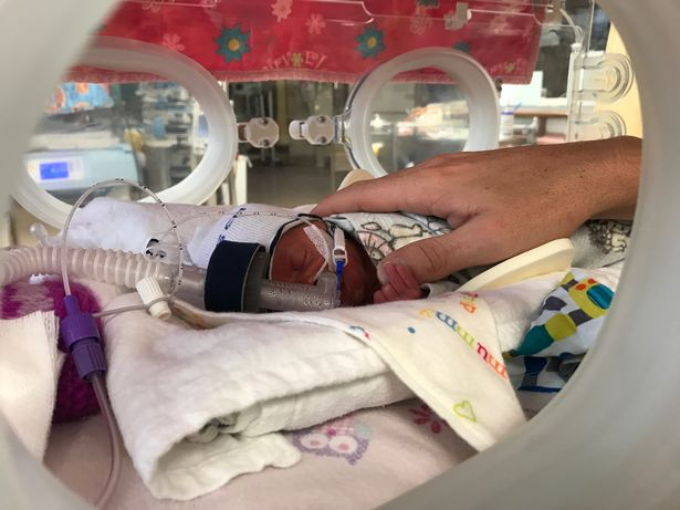 Chào đời với khối u lớn gấp rưỡi cơ thể, nhưng chỉ 1 năm sau ai nhìn em bé cũng bất ngờ-2