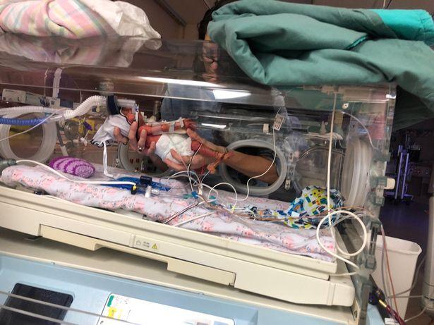 Chào đời với khối u lớn gấp rưỡi cơ thể, nhưng chỉ 1 năm sau ai nhìn em bé cũng bất ngờ-3