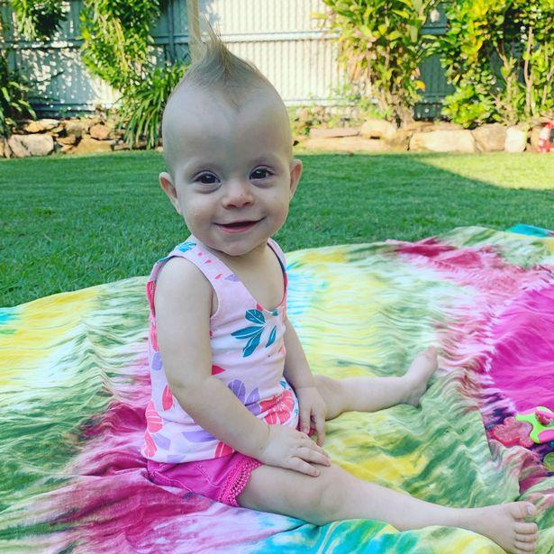 Chào đời với khối u lớn gấp rưỡi cơ thể, nhưng chỉ 1 năm sau ai nhìn em bé cũng bất ngờ-5