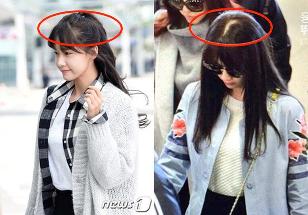Sấy tóc như Yoona bảo sao tóc cô cứ rụng, mỏng dính lộ cả mảng da đầu: Chị em cũng nên cẩn thận đừng mắc sai lầm này-1