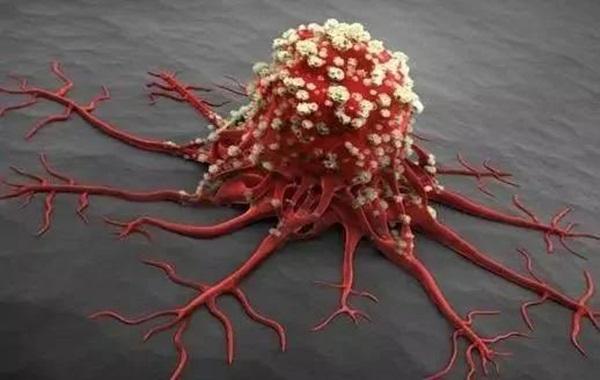 Có 4 thay đổi nhỏ trên cơ thể, hãy coi chừng vì có thể bệnh ung thư đang âm thầm tìm đến bạn-1