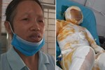 Thương tâm: Thiếu nữ bị bỏng đến 95%, nghi do bạn trai tưới xăng đốt tại vườn cao su ở Bình Dương-4