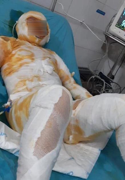 Vụ chồng tưới xăng đốt vợ để lại 3 con nhỏ bơ vơ ở Thái Bình: Nỗi đau tột cùng của người mẹ, người bà-1