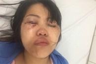 Vụ nữ nhân viên điều hành taxi bị chồng đánh đập dã man: Chồng tố ngược vợ có quan hệ bất chính với đồng nghiệp