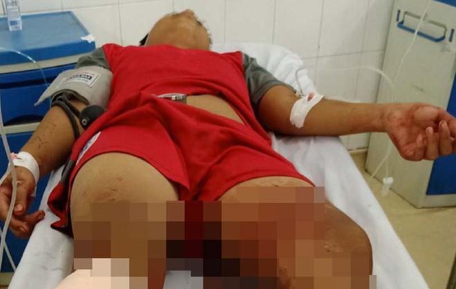 Mẹ thiếu niên bị chém ở Tây Ninh: Thấy bị chặn đường, Đ. quay đầu chạy thì bị đuổi theo chém rơi chân xuống-3