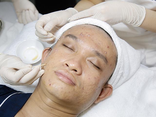 Tuyệt đối không được làm những điều sau, da mặt sẽ xấu đi vì sẹo rỗ-2